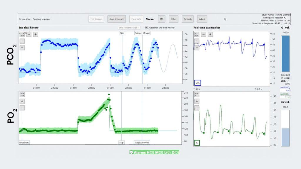 RespirAct® gas monitor chart